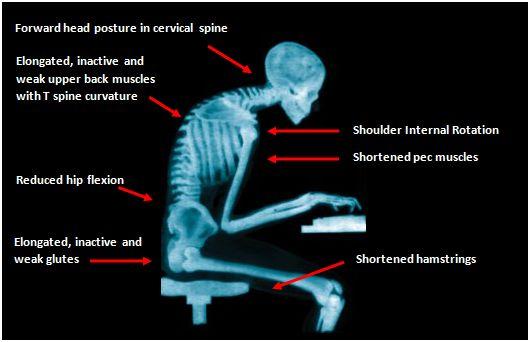x-ray-of-bad-posture